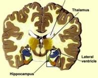 hippocampus2